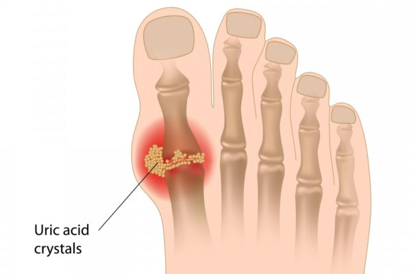 gout joint pain