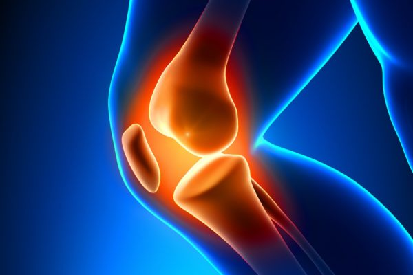 Arthritis pain relief information